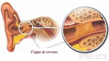 SOS TAPPO DI CERUME NELLE ORECCHIE: COME COMPORTARSI?
