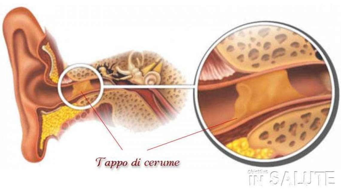prezzo base comprare bene caratteristiche eccezionali SOS TAPPO DI CERUME NELLE ORECCHIE: COME COMPORTARSI?